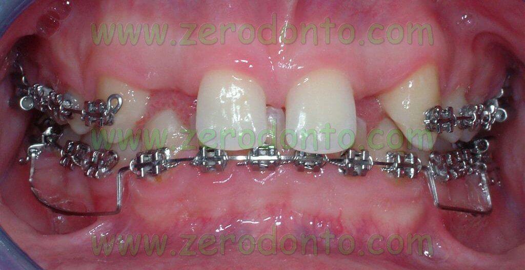 Attacchi ortodontici