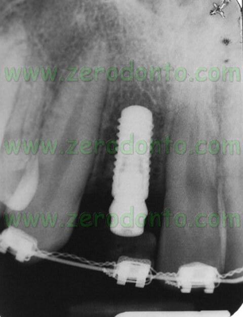 Radiografia endorale bone level