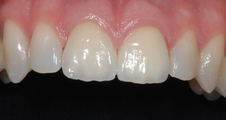 Corone in oro ceramica vs zirconia