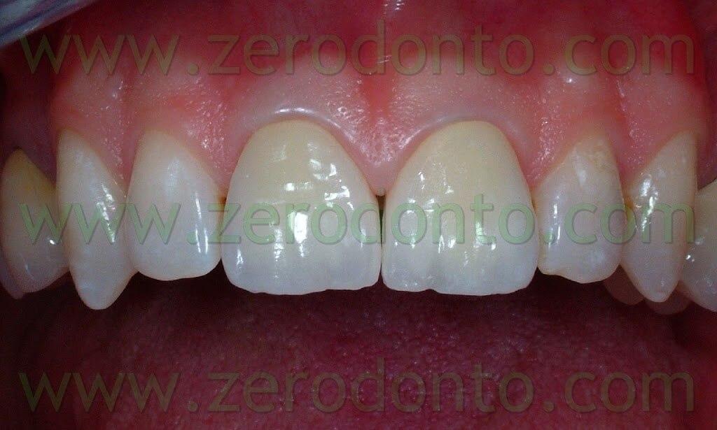 protesi metallo-ceramica incisivi centrali