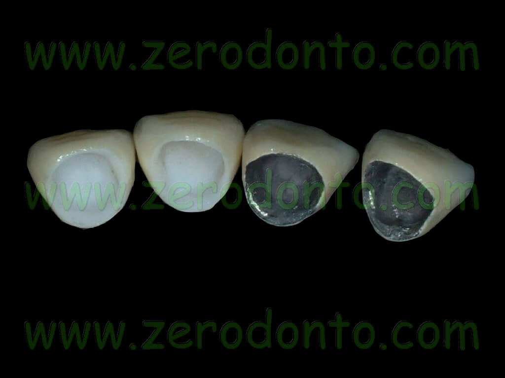 Corone in zirconia vs metallo-ceramica