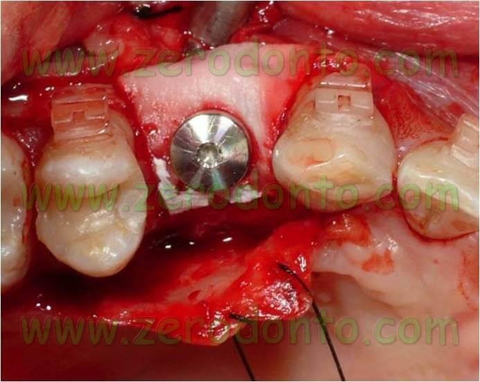 Impianto Straumann con rigenerazione ossea (GBR) mediante Bio-Gide e Bio-Oss