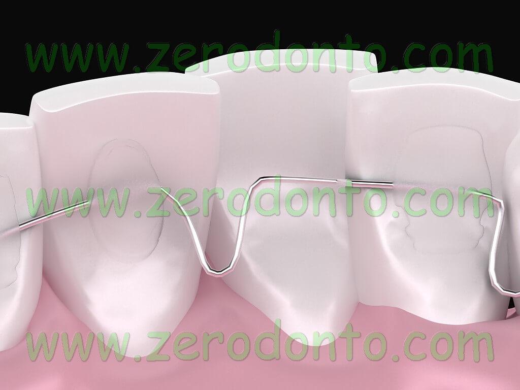 ortodonzia linguale senza problemi di fonetica