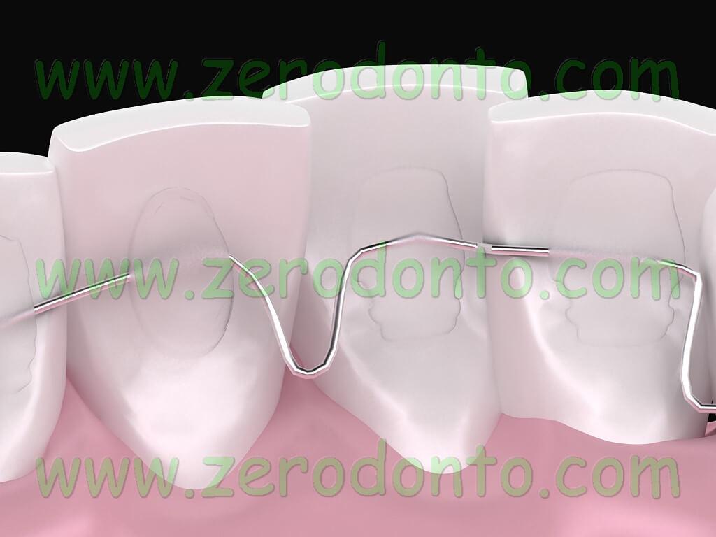 ortodonzia linguale confortevole