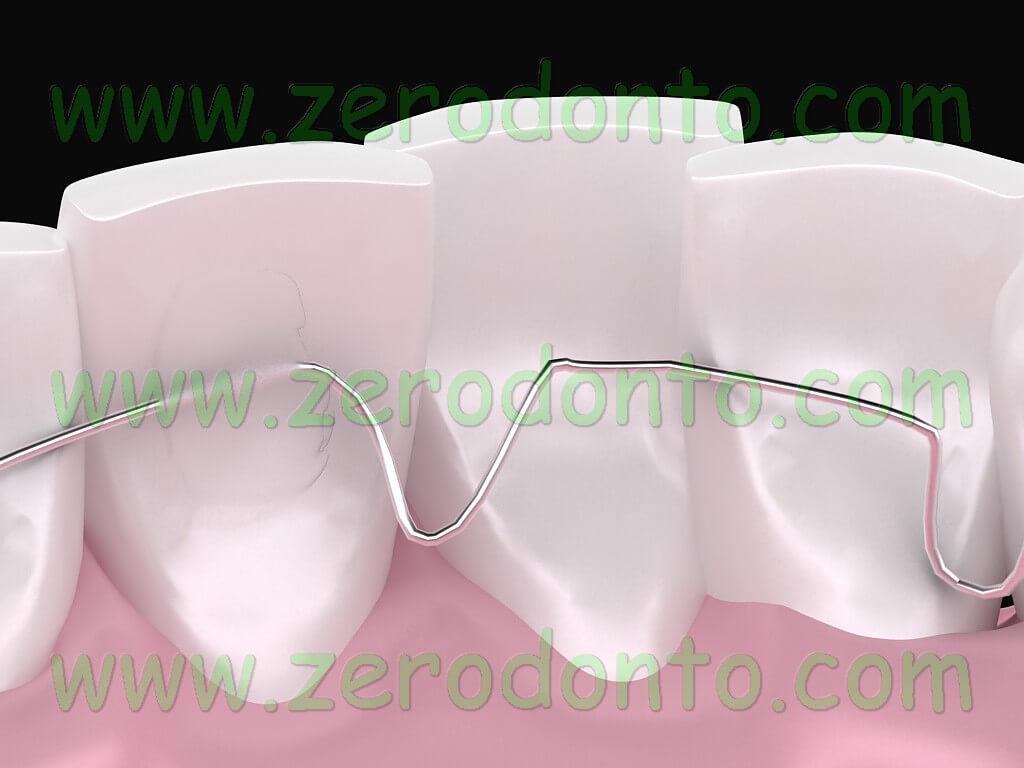 ortodonzia linguale senza attacchi