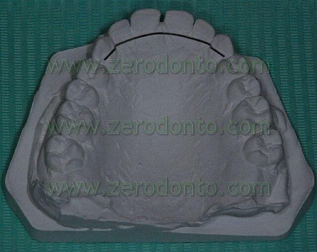 ortodonzia invisibile per chiudere gli spazi tra i denti