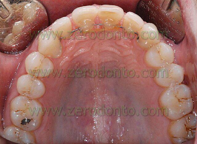 chiusura del diastema inter incisivo