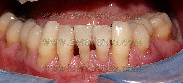 allineamento dentario paziente adulto