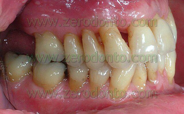 terapia ortodontica nel paziente adulto