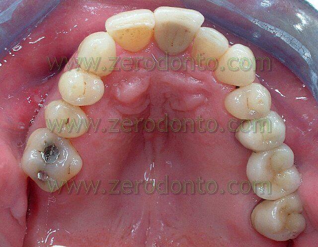 terapia ortodontica in paziente con impianto dentario