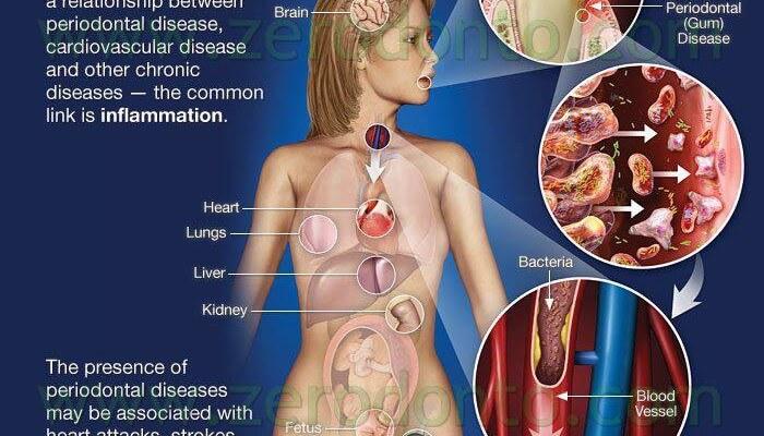 Malattia parodontale (parodontite) come fattore di rischio di malattie cardiovascolari (infarto, ictus)