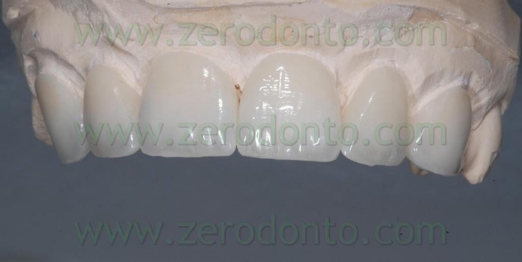 ceramica dentina