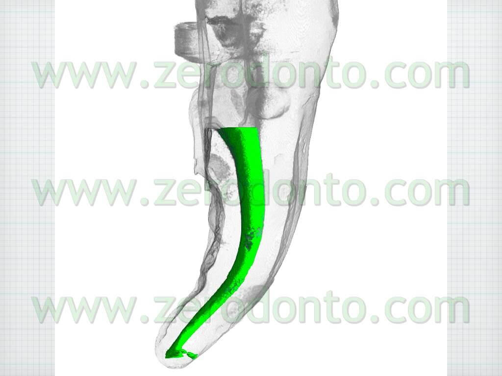 canale curvo endodonzia