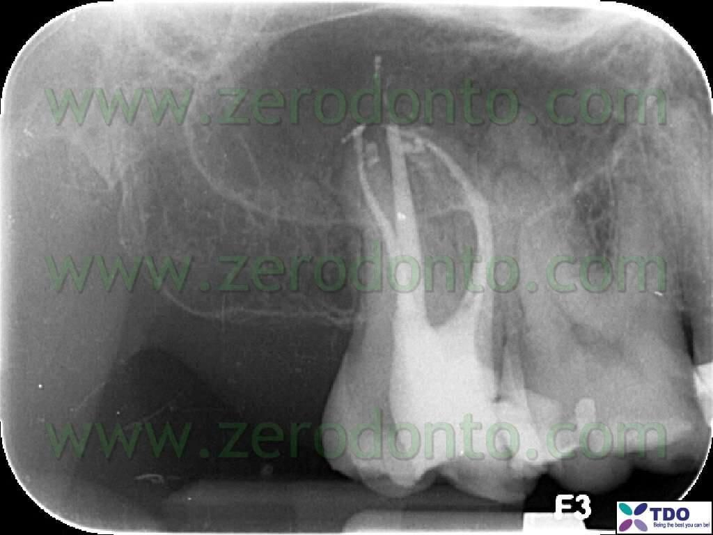 dente endodonzia