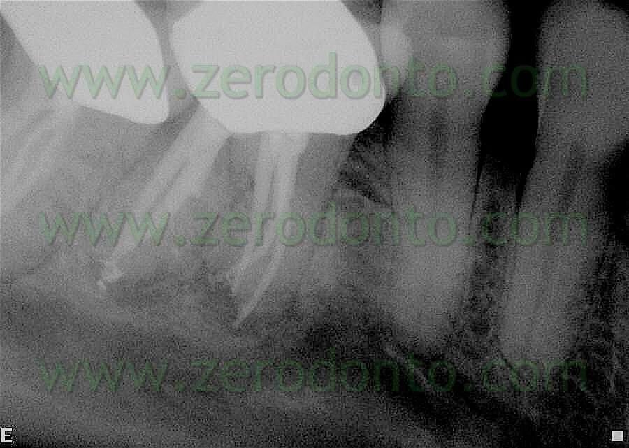 canali denti
