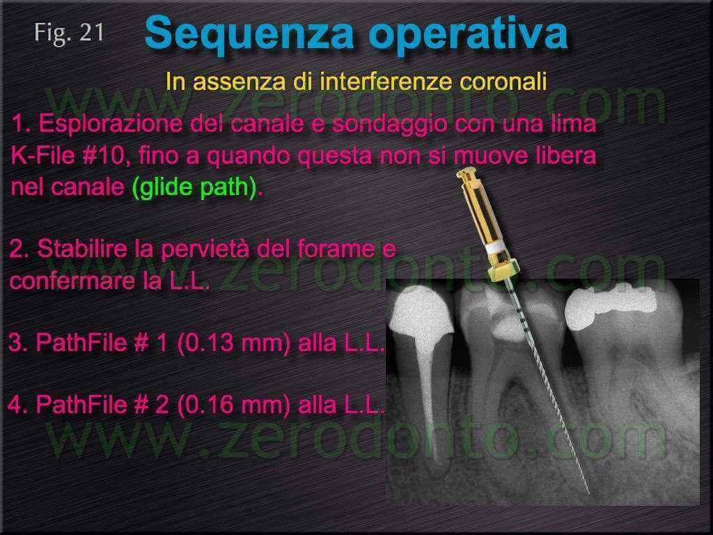 interferenze coronali