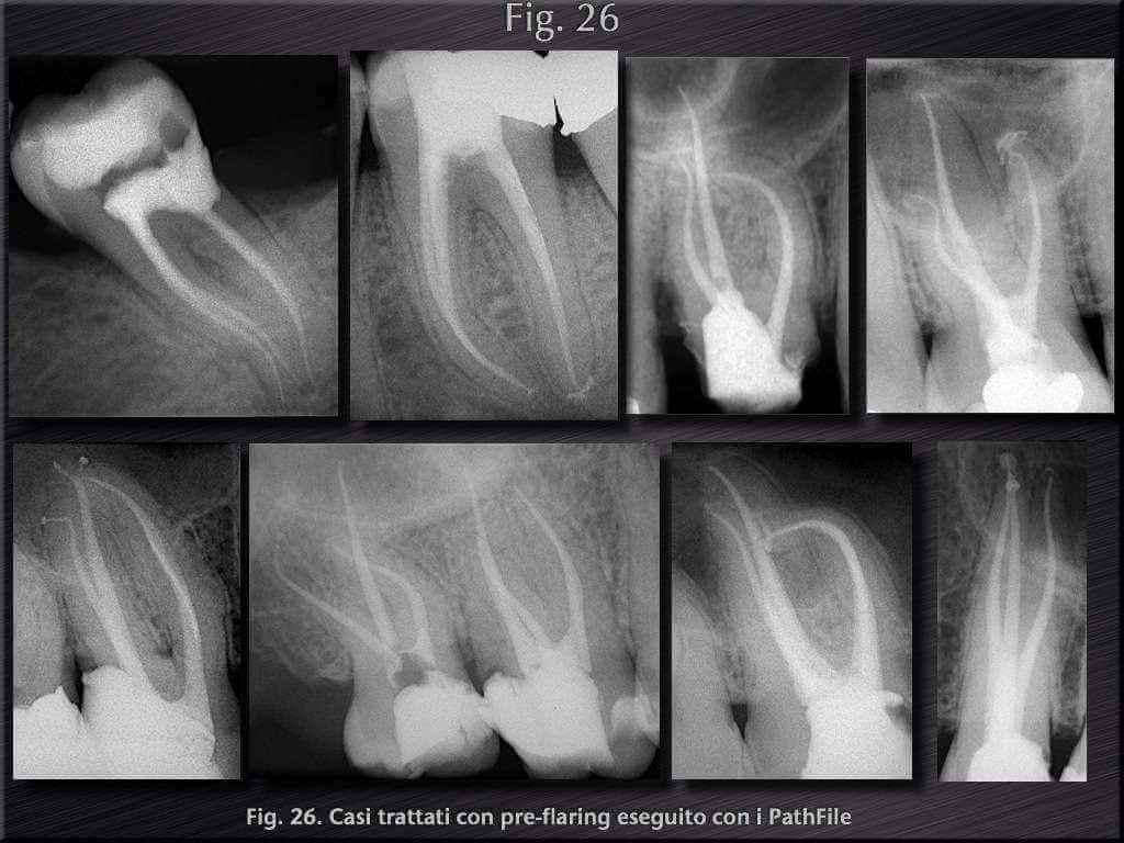 endodonzia cantatore