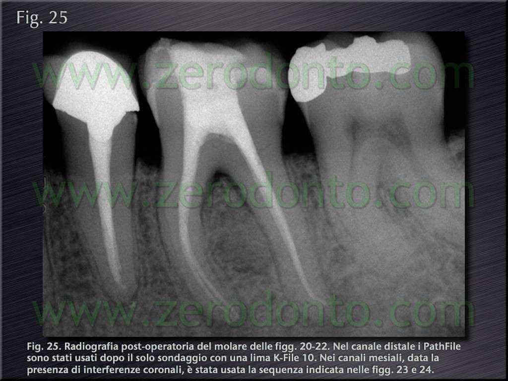 endodonzia castellucci