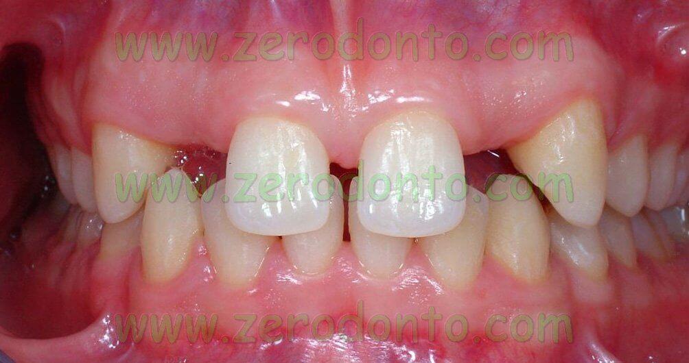 agenesia denti impianti straumann bone level zirconia etkon