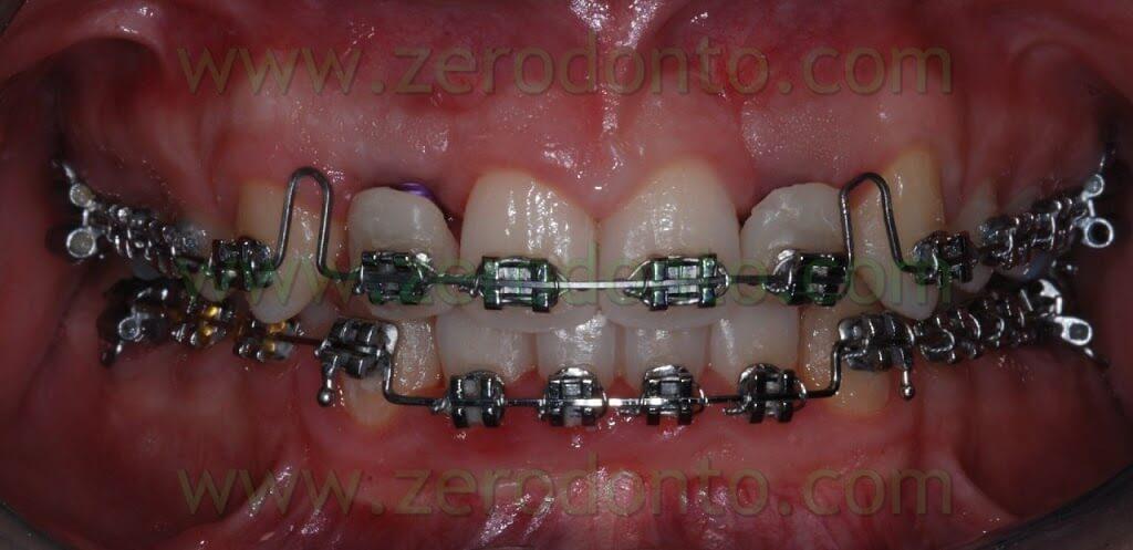 agenesia denti