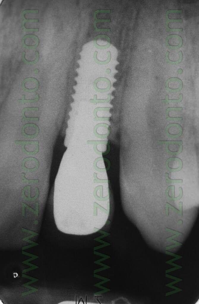 radiografia bone level