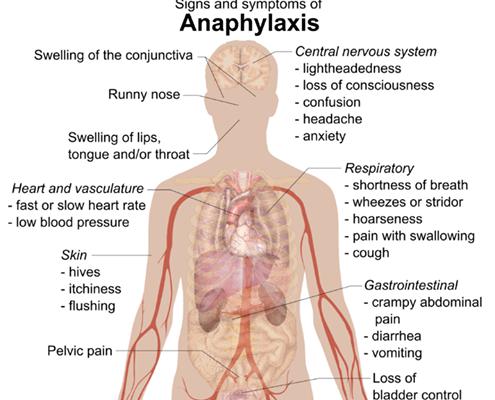 L'anafilassi sistemica: come riconoscere e trattare questa emergenza clinica
