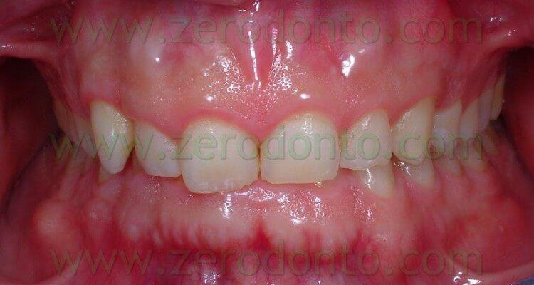 Ortodonzia Invisibile: malocclusione di prima classe con canino incluso e morso profondo.