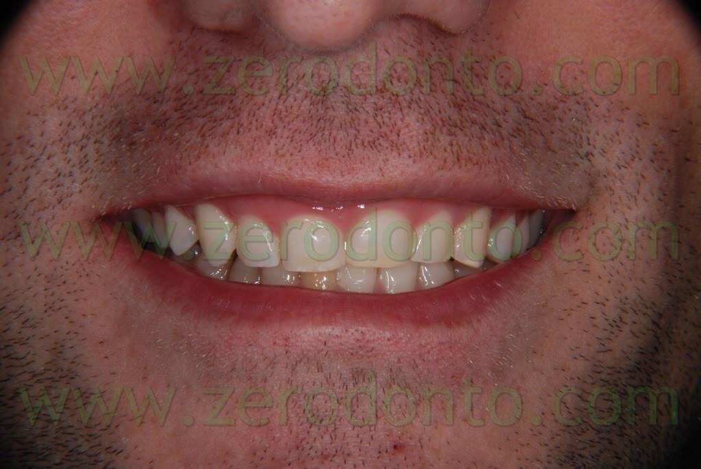 riduzione del sorriso gengivale