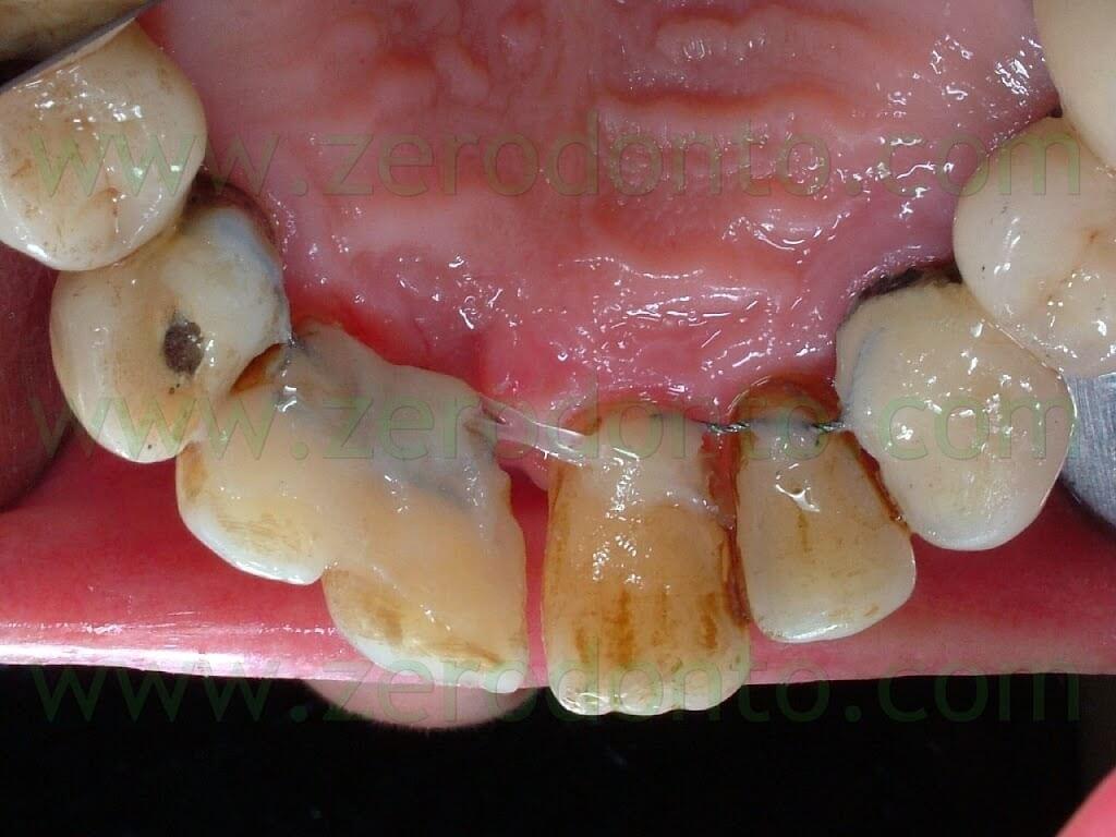 retainer ortodontico