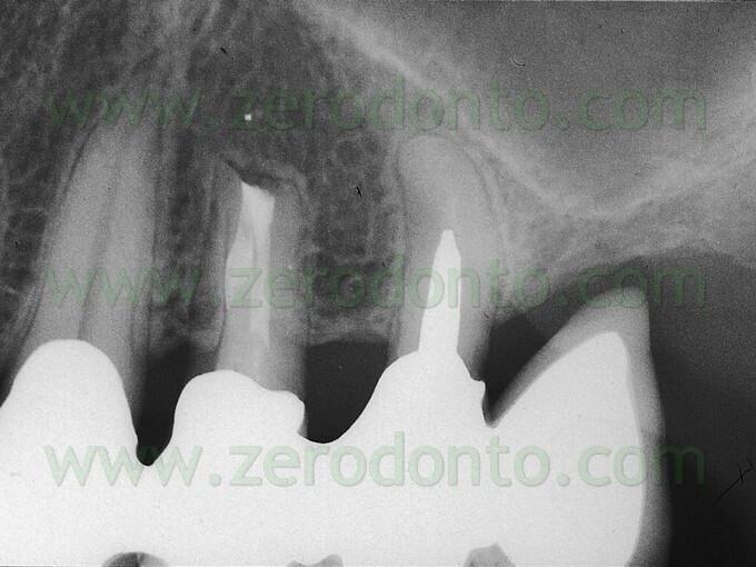 endodonzia mta