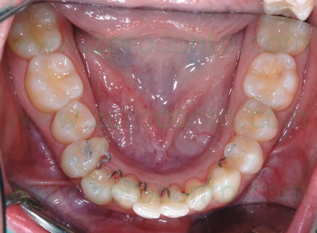 allineamento dentario