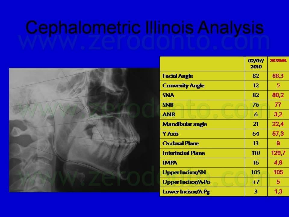 analisi cefalometrica finale