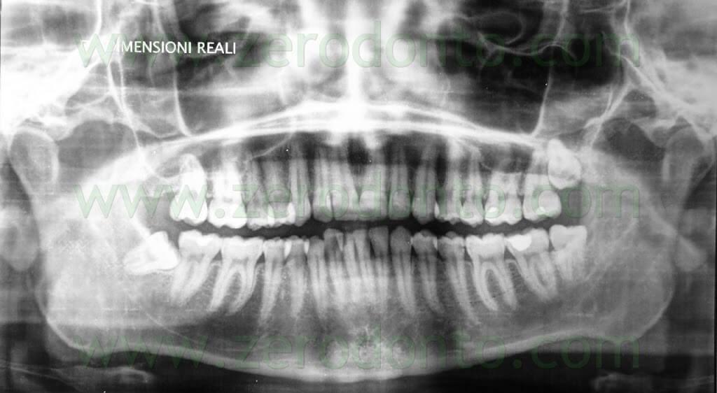 ortopantomografia pre-trattamento