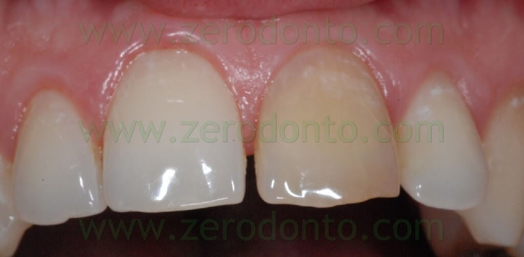 sbiancamento laser dei denti