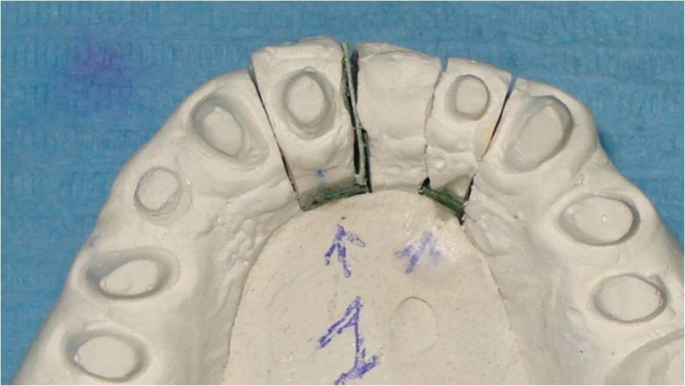 ortodonzia provvisorio guidata