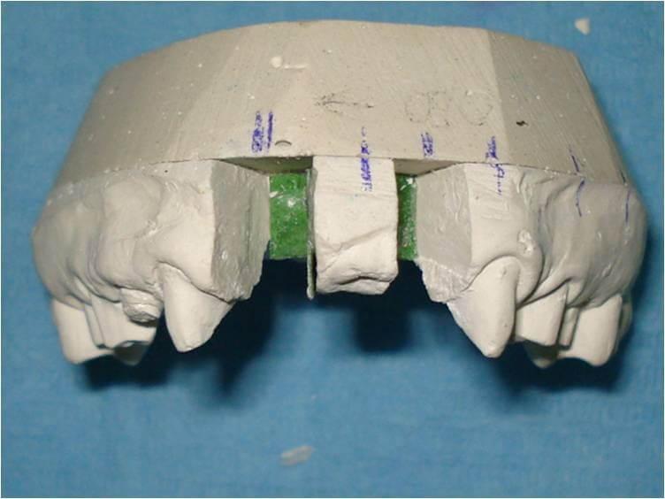 ortodonzia protesicamente guidata