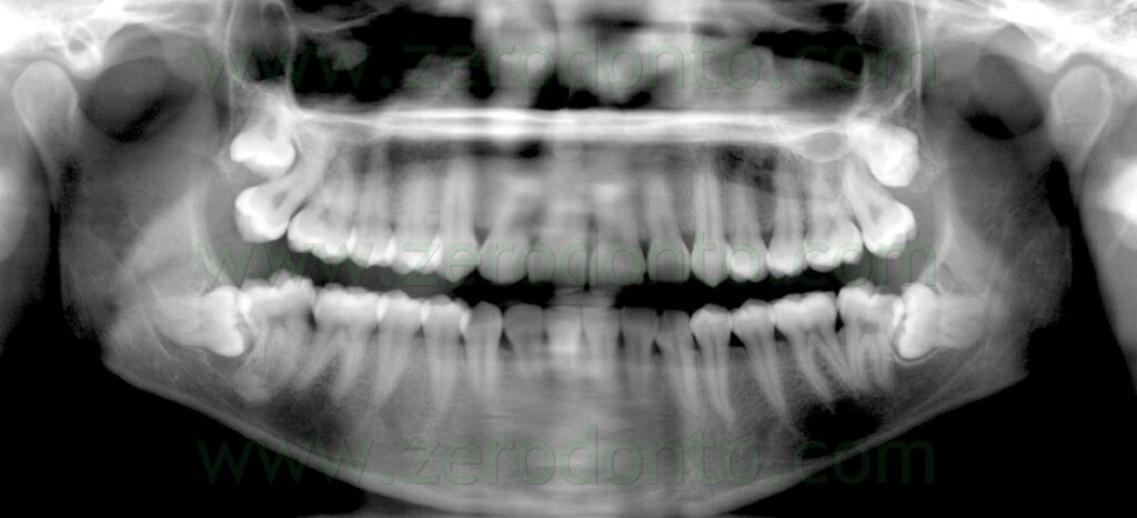 6 radiografia ottavo inferiore