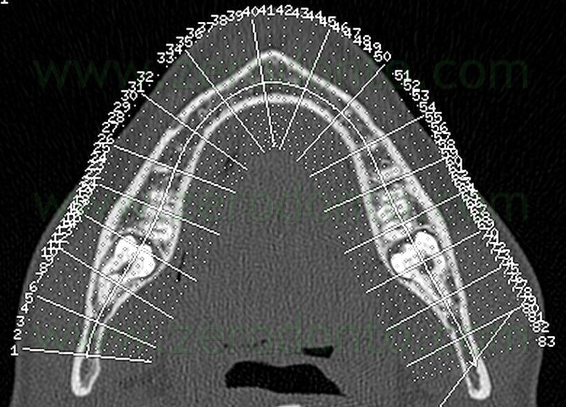 7 tac dente del giudizio inferiore