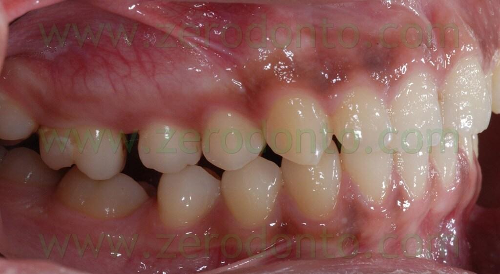 25 seconda classe distalizzazione molari