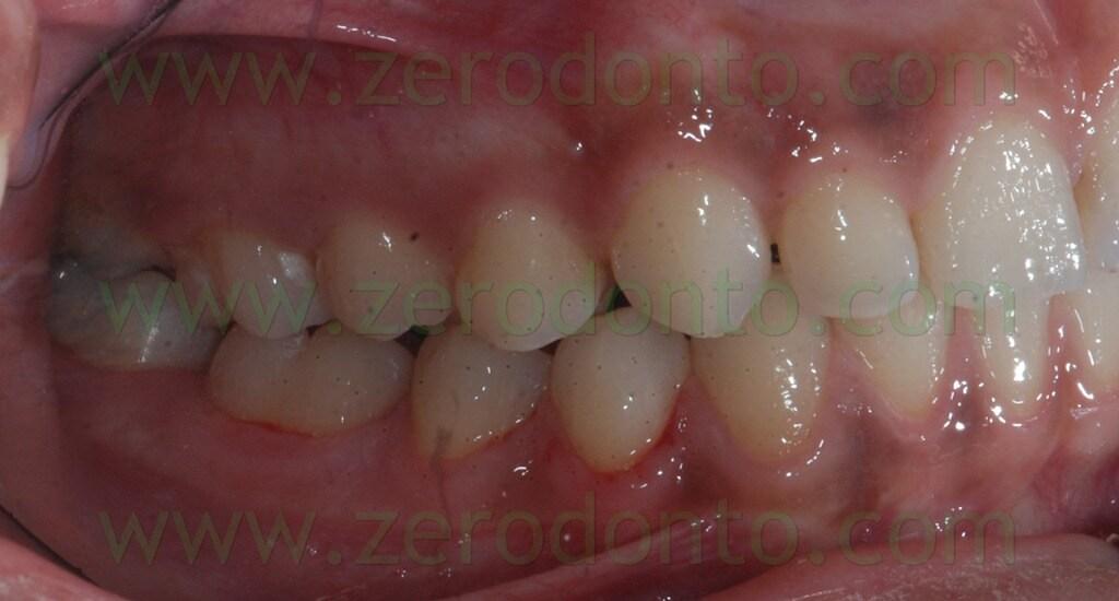 38 prima classe dentaria