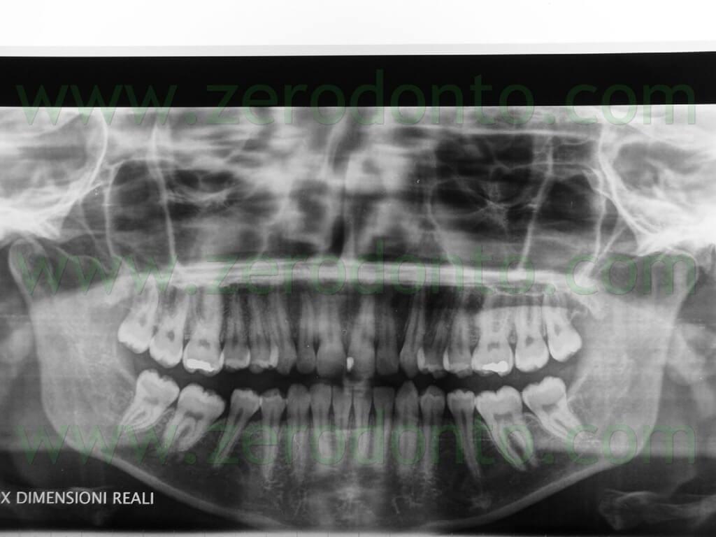 7 ortopantomagrafia