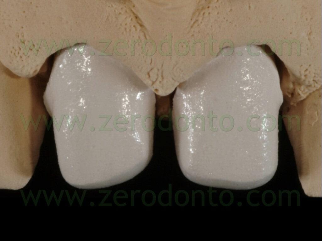 88 stratificazione ceramica faccette