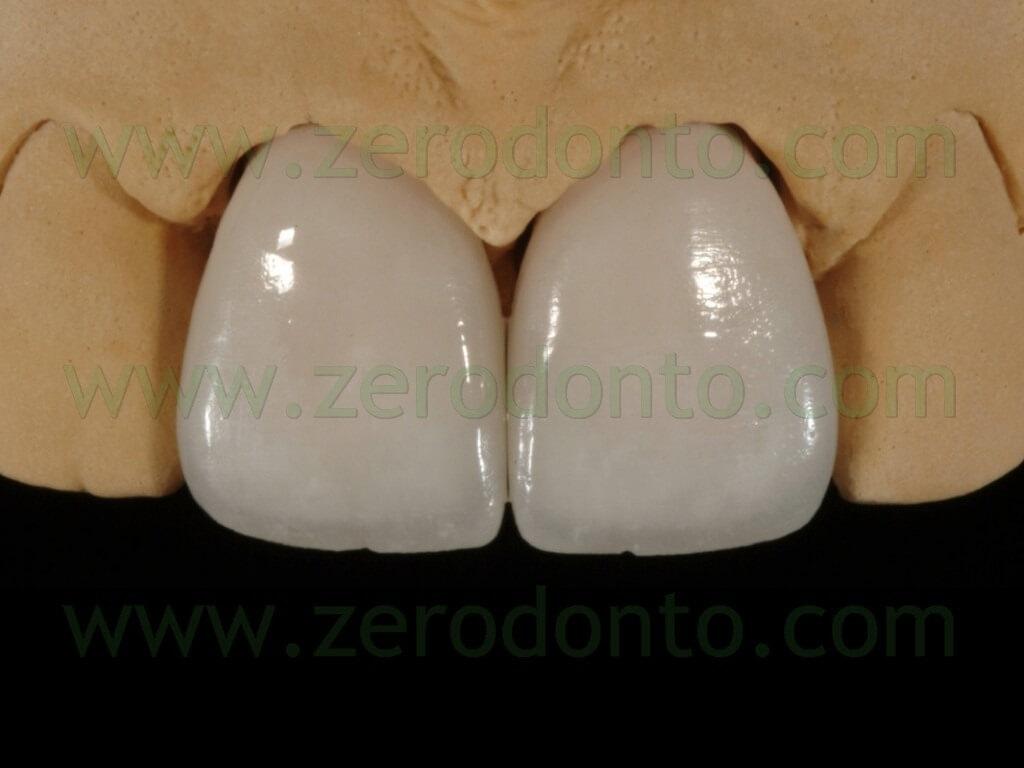 92 rifinitura superficie faccette ceramica