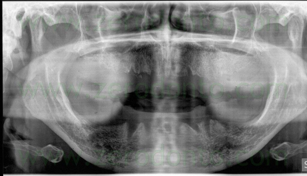 - (7) ortopantomografia