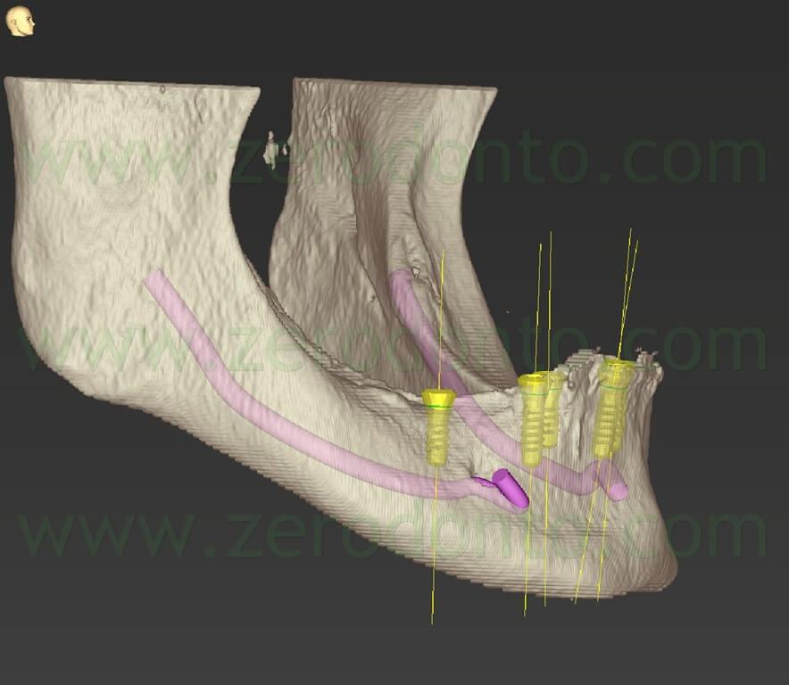 - (71) implantologia guidata