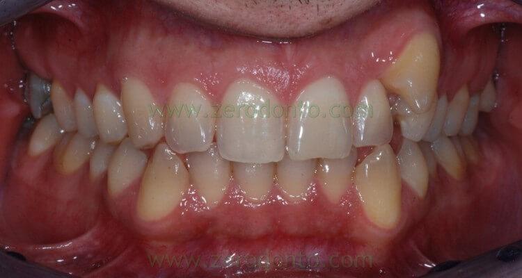Ortodonzia invisibile: malocclusione caratterizzata da un canino ectopico vestibolare