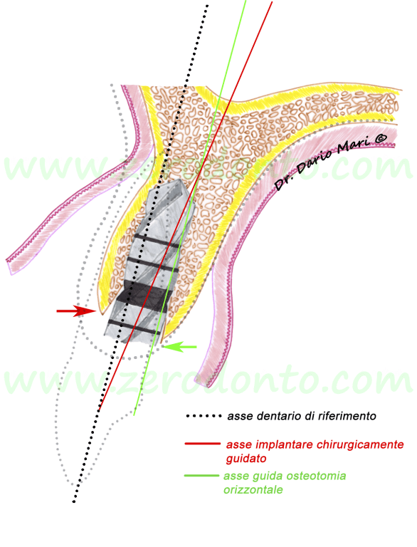 sequenza chirurgica split crest protocollo operativo impianti straumann illustrazioni chirurgia orale implantologia ITI classification guidelines
