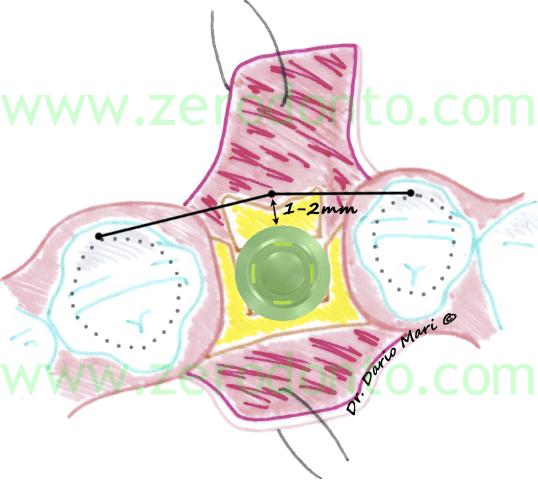 linee guida ITI buser et al. classificazione SAC 1-2 mm comfort zone impianti zona estetica dario mari split crest lateral augmentation