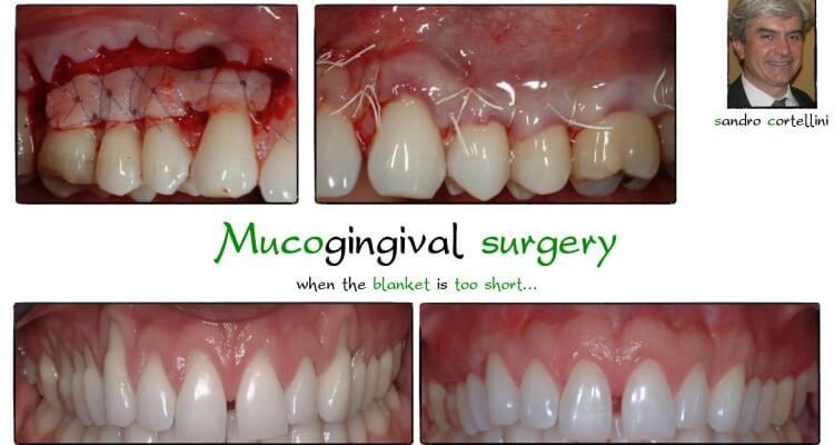 Mucogingival surgery