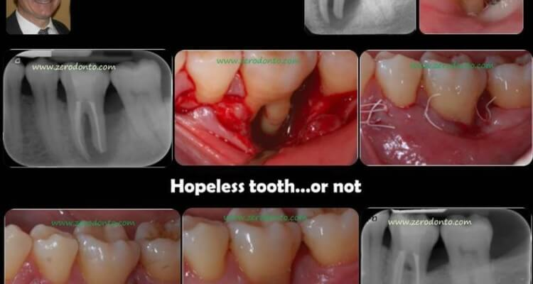 """Hopeless tooth"" treatment #2"